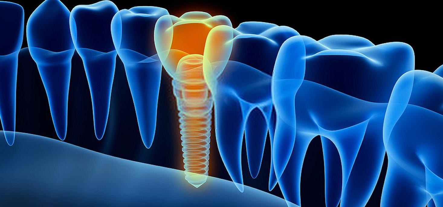 baltimore-dental-implant-all-on-four