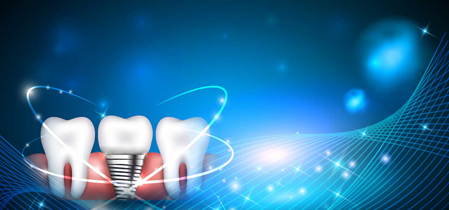 baltimore-dental-implant