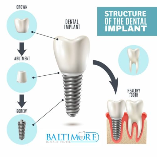 dental-implants-baltimore-md-410-implants